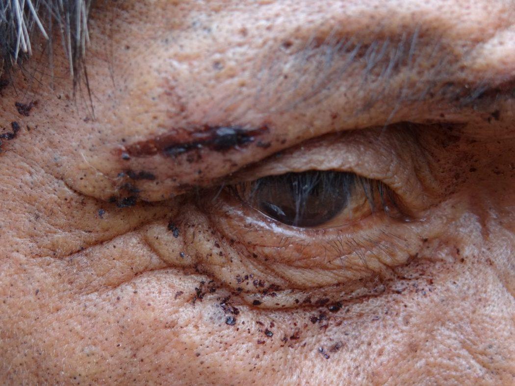 Indígena se feriu enquanto fugia de ataque à comunidade Pyelito Kue, em 2011. Foto: Divulgação MPF
