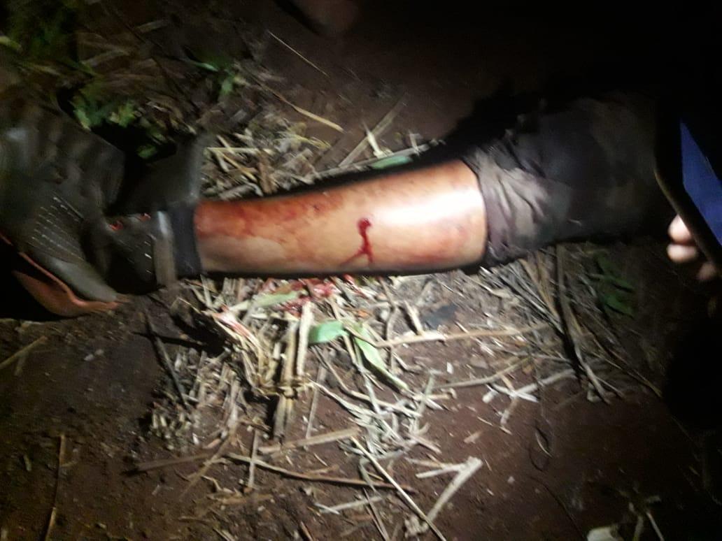 Homem Guarani Kaiowá atingido na perna por disparo de bala de borracha. Foto: Comunidade Ñu Vera