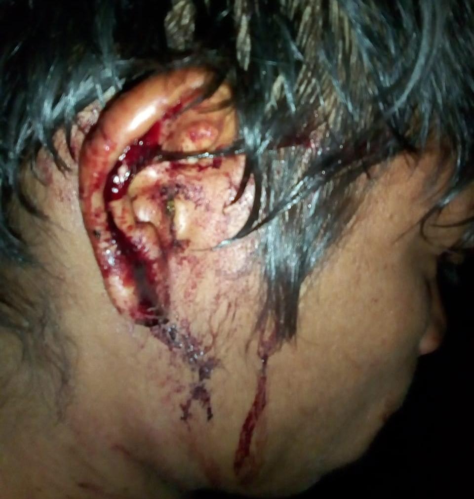 No tekoha Ñu Vera Guasu, um indígena foi ferido por balas de borracha no tórax, no ombro e na cabeça no ataque desta terça (5). Foto: comunidade Ñu Vera